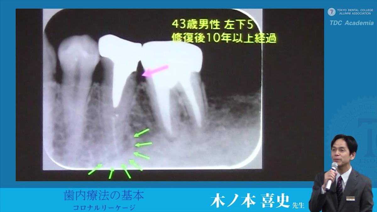 endodontics_01