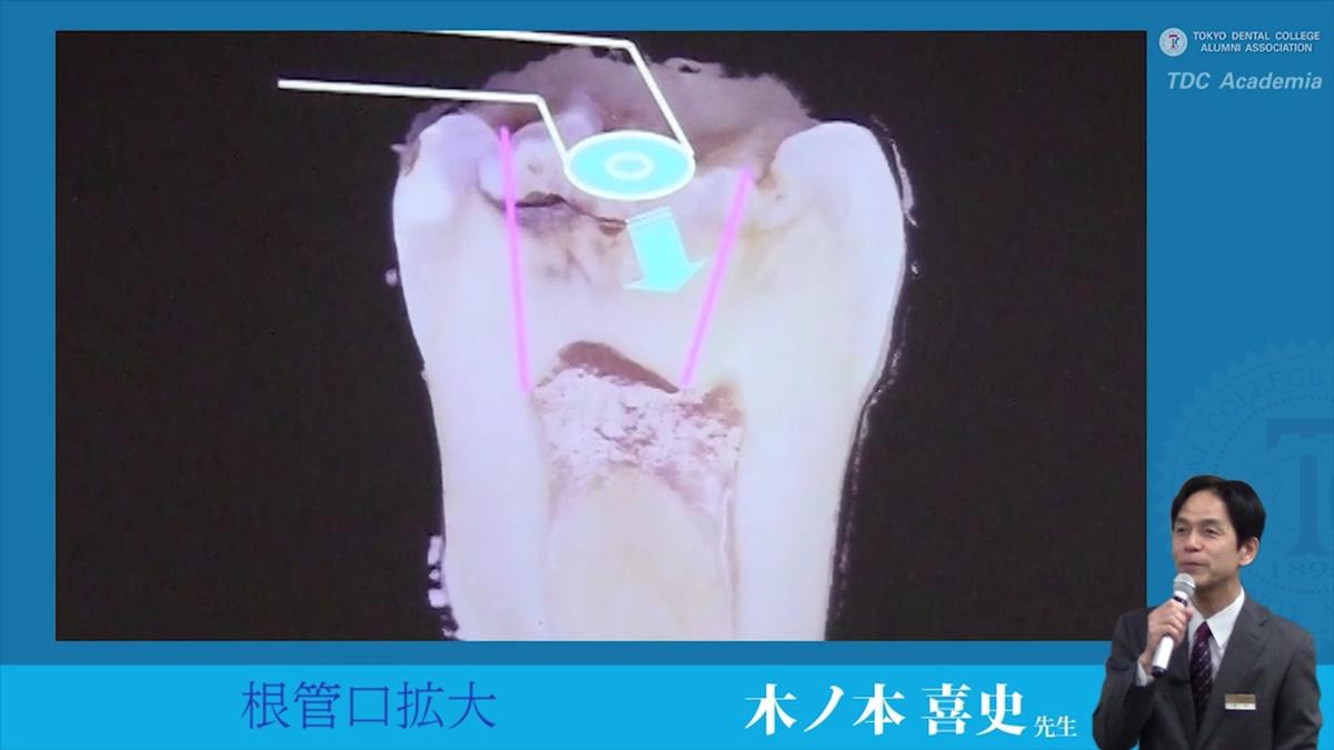 endodontics_03