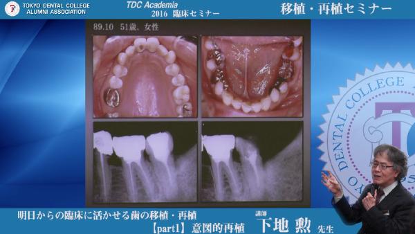 2016 TDCアカデミア 臨床セミナー/移植・再植セミナー「明日からの臨床に活かせる歯の移植・再植」(2016/7/10、講師:下地 勲先生)Doctorbook配信開始