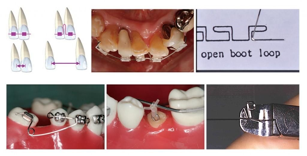 2017 TDCアカデミア 臨床セミナー/MTMセミナー はじめてのMTM ~入門!やさしい歯の移動テクニック~(2017年9月30日(土)・10月1日(日)全2日間) 講師:末石研二、西井 康、立木千恵