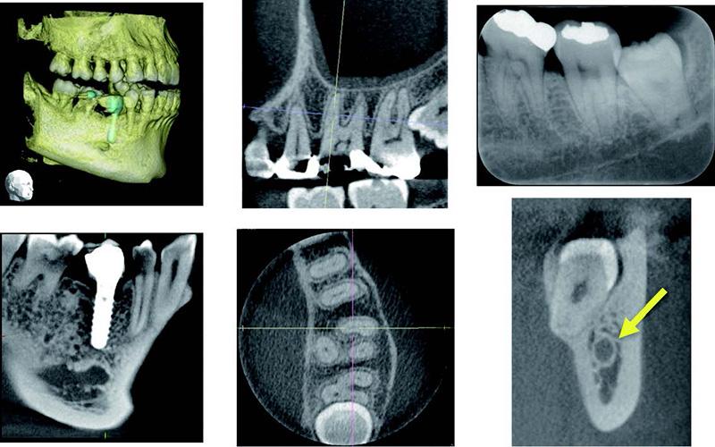 2018 TDCアカデミア 臨床セミナー/画像診断セミナー デンタル、パノラマX線画像とコーンビームCTの読影(2017年5月20日(日)) 講師:後藤 多津子(東京歯科大学 歯科放射線学講座 主任教授)
