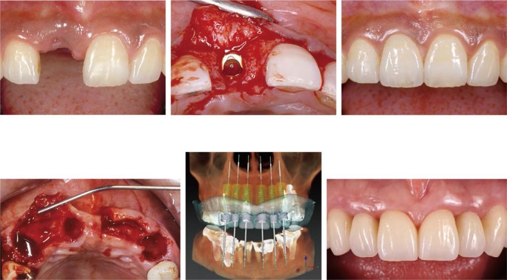 2019 TDCアカデミア 臨床セミナー/インプラントアドバンスセミナー「前歯部審美領域におけるインプラント埋入の極意」[2019年9月28日(土)・29日(日)、全2日 講師:小濱忠一]
