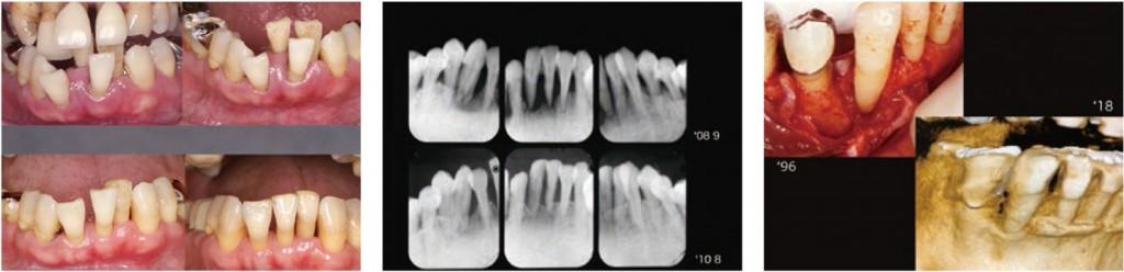 2019 TDCアカデミア 臨床セミナー/歯周基本治療セミナー「ハンドスケーラー VS 超音波スケーラー」〜「最良」の歯周基本治療!!〜(2019年7月21日(日)・講師:牧野 明、大野純一)