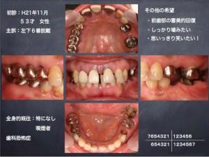 2019 TDCアカデミア 卒後研修 症例1-1