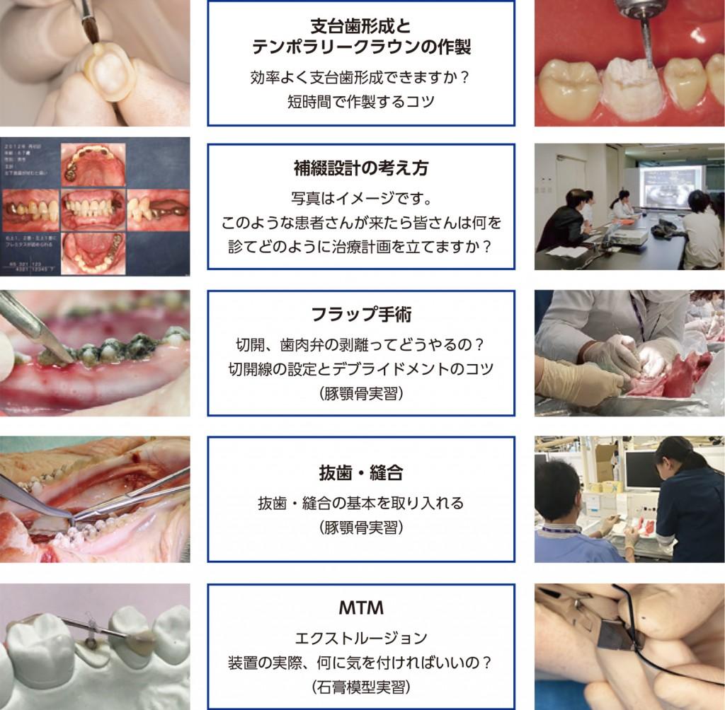 2021 TDCアカデミア 臨床セミナー/ベーシックハンズオンセミナー「すぐに役立つ臨床のコツ」 〜実践スキルの向上 補綴、矯正、ぺリオ、口腔外科編〜[2021年9月5日(日)]